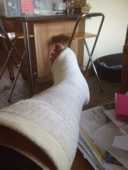 Foot in plaster, an accident and a summer of inactivity